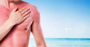 Secrets to Treating Sunburn