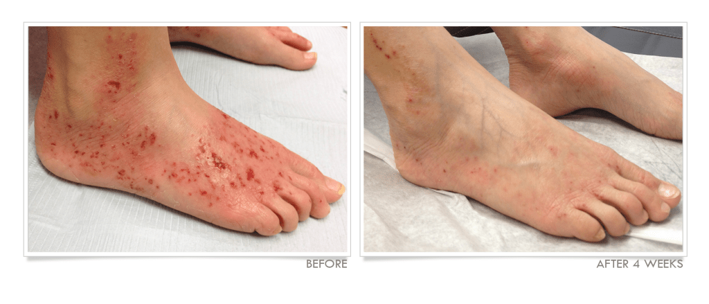 Eczema on Feet Before & After