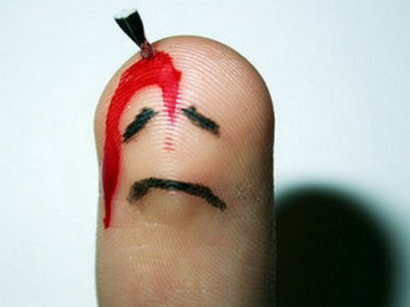 So Bored I Cut my Finger (Flexor tendon injury)