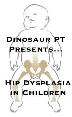 hip dysplasia children