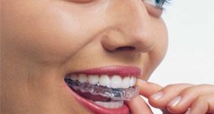 ίσια δόντια