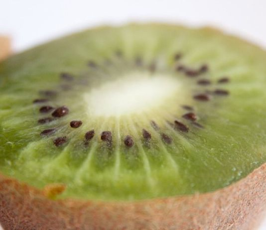 Cultivo kiwi