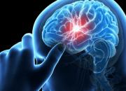 Ανακαλύφθηκε γονίδιο «ένοχο» για εγκεφαλικά επεισόδια