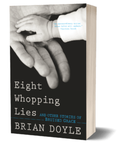 Eight Whopping Lies and Other Stories of Bruised Grace