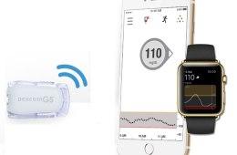 dexcomg5-apple-watch-hero