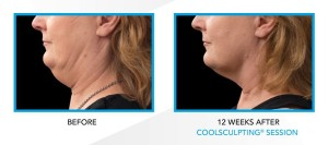 double chin reduction after weight loss