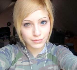 Congenital complete heterochromia