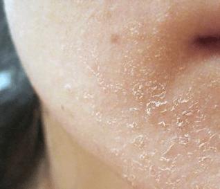 flaky skin