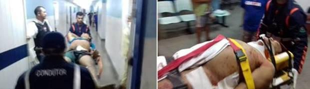 Francisco Gilson de Souza Martins, de 26 anos de idade, momento que dava entrada no HRJC - Hospital Regional de João Câmara e em seguida transferido para o Hospital Walfredo Gurgel em Natal pelo SAMU                   (Foto: Marco Montoril)