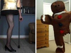 Sobrevivente de câncer com perna amputada cria fantasias de Halloween brilhantes todo ano