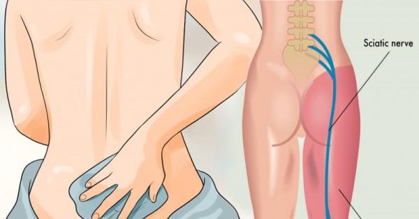 8-gyogymod-isiaszos-fajdalom-ellen-amit-ki-kell-probalnod-mielott-meg-egy-fajdalomcsillapitot-bevennel
