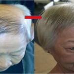Tegyél néhány csepp szérumot a fejbőrödre…egy kicsit várj…és minden elveszett hajad visszanő…Félelmetes!