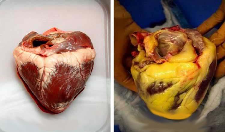 Ez a 10 étel megtisztítja az artériákat és segít megelőzni a szívinfarktust