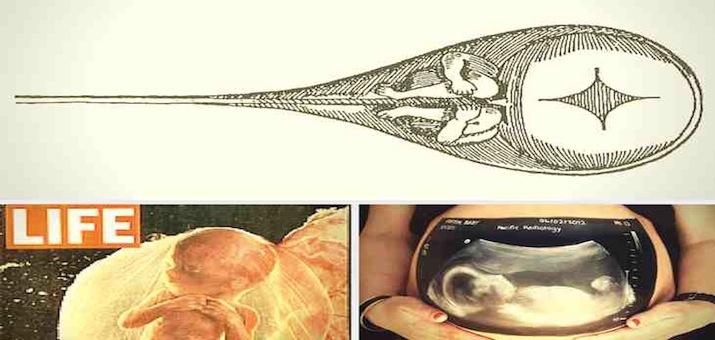 pregnancy small