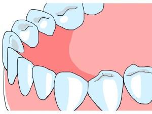 口臭の原因となる膿栓(臭い玉)とは?