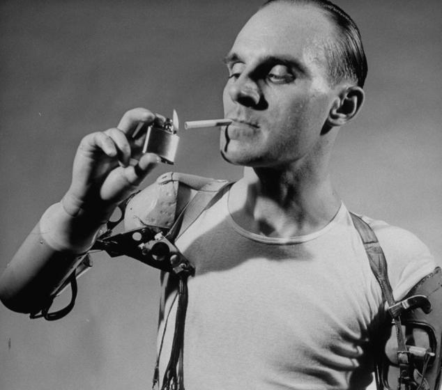 140912-artificial-limb-1950-cigarette