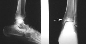 Xray of Fracture of Medial Malleolus