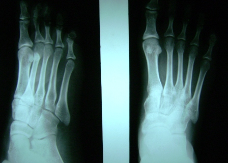 normal Foot xrya anteroposterior and lateral views