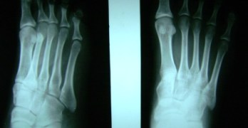 Foot X-ray – Normal Findings