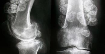 Synovial Chondromatosis