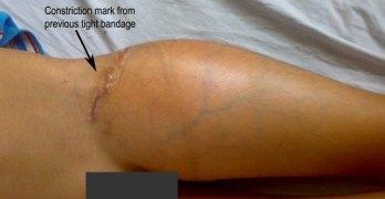 Bone Tumors Images and Xrays