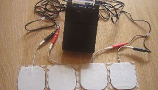 Transcutaneous electrical nerve stimulation-TENS