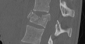 Thoracolumbar Burst Fracture