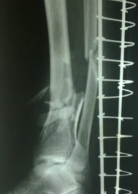 Radiographs of Tibia Fibula Fracture | Bone and Spine