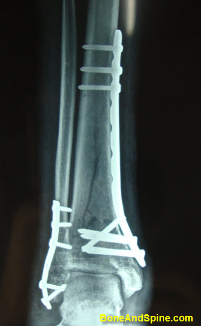 Distal Tibia Distal Fibula Treated With Open Reduction and Internal Fixation