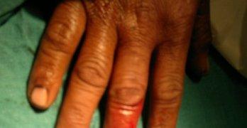 Hand Injuries -Xrays and Photographs