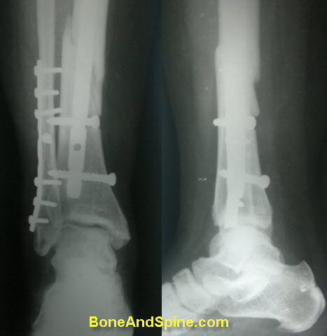Fracture of Tibia and Fibula