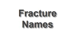 Popular Fracture Names
