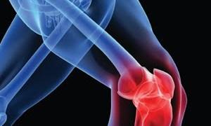 Arthritis Knee Pain – Exercise Plus Diet Are Better