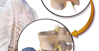 Herniated Disc surgeries
