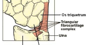 Triangular Fibrocartilage Complex Tears