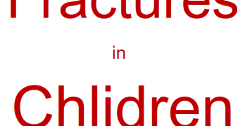 Fractures in Children – Causes and Management