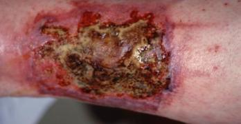 Wound debridment becomes necessary in such cases
