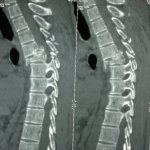 Spine Injuries Xrays and Photographs