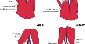 Popliteal Artery Entrapment Syndrome