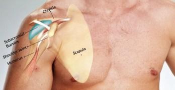 Subacromial Bursitis Presentation and Treatment