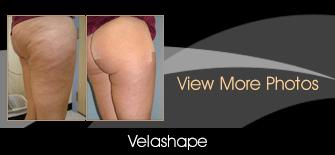 Vela shape