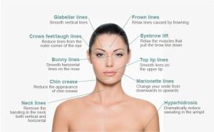 Gresham-Cosmetic-Laser-Botox-Diagram