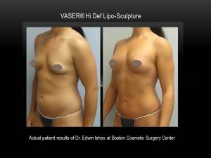 VASER-Hi-Def-boston-cosmetic-surgery-edwin-ishoo