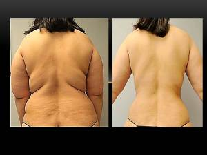 vaser-lipo-back--dr-ishoo--boston-cosmetic-surgery-center