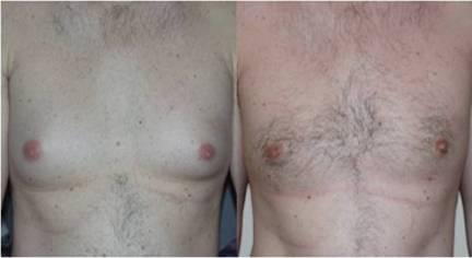 male_breast_b_a