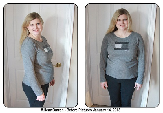 iheart omron before pictures