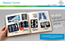 Bayer lance la campagne « les rayons X et moi »