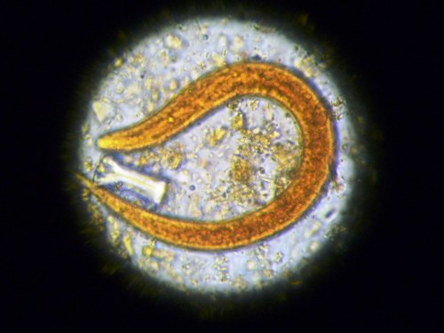 Medium Of Worm Under Microscope