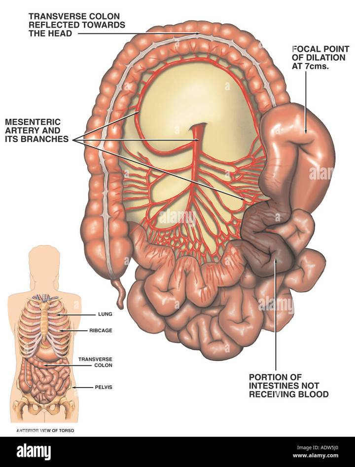 Blood In The Inferior Mesenteric Artery Travels To What Organs