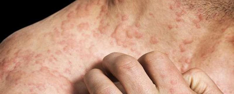 Gejala-gejala yang Timbul pada Kanker Kulit